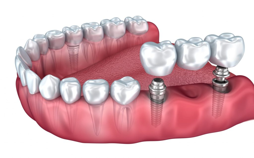 How to get fine Dental Implants in Los Angeles