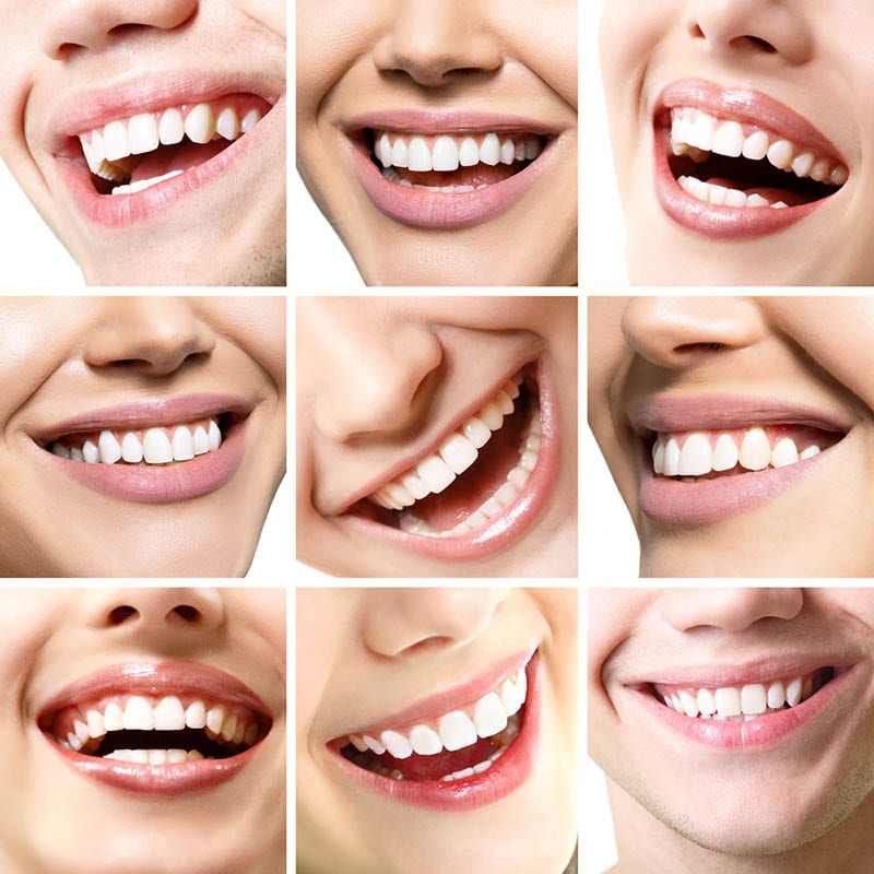 Best Cosmetic Dentist In Beverly Hills Offering Smile Makeover