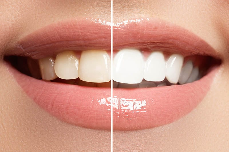 advancements made in esthetic dentistry in Los Angeles