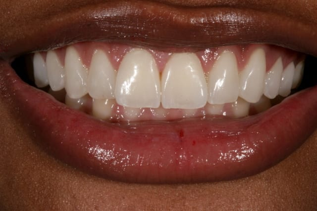dental veneers before