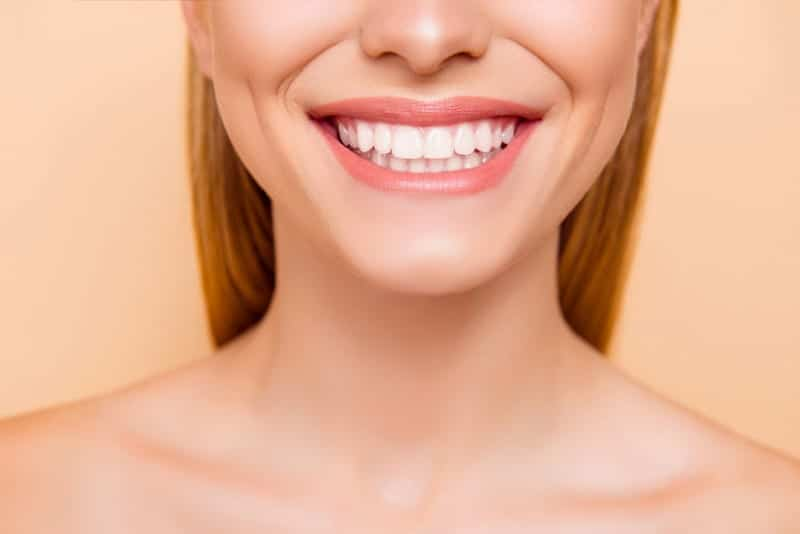 Things You Should Know Before Teeth Whitening Los Angeles dentists1