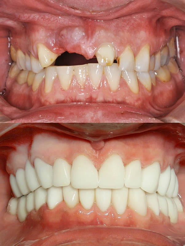 smile makeover in los angeles