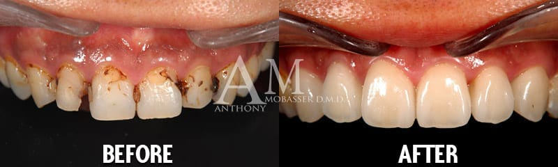 before after emax reconstruction
